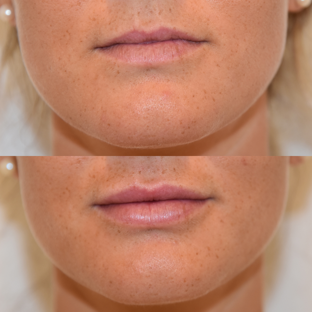 plump lips with filler