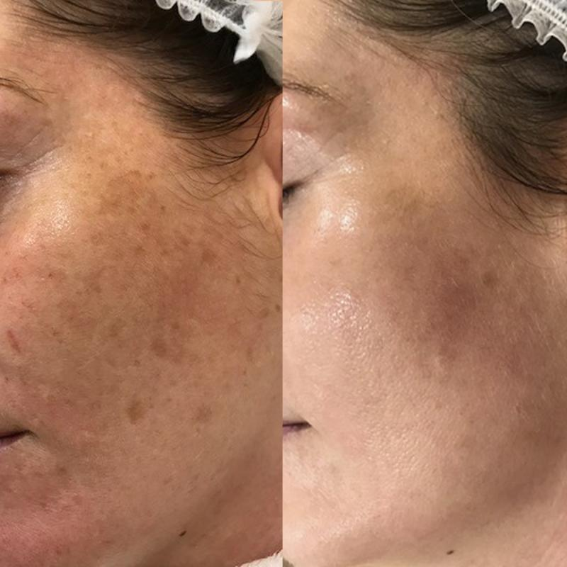 Pigmentation before and after The Face Place