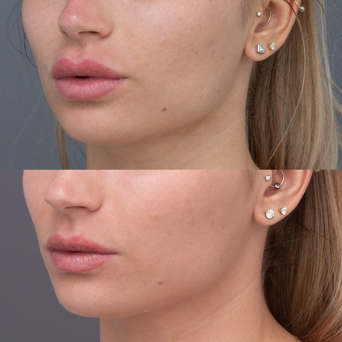 Amy Before & After focus lip view_3.4 view