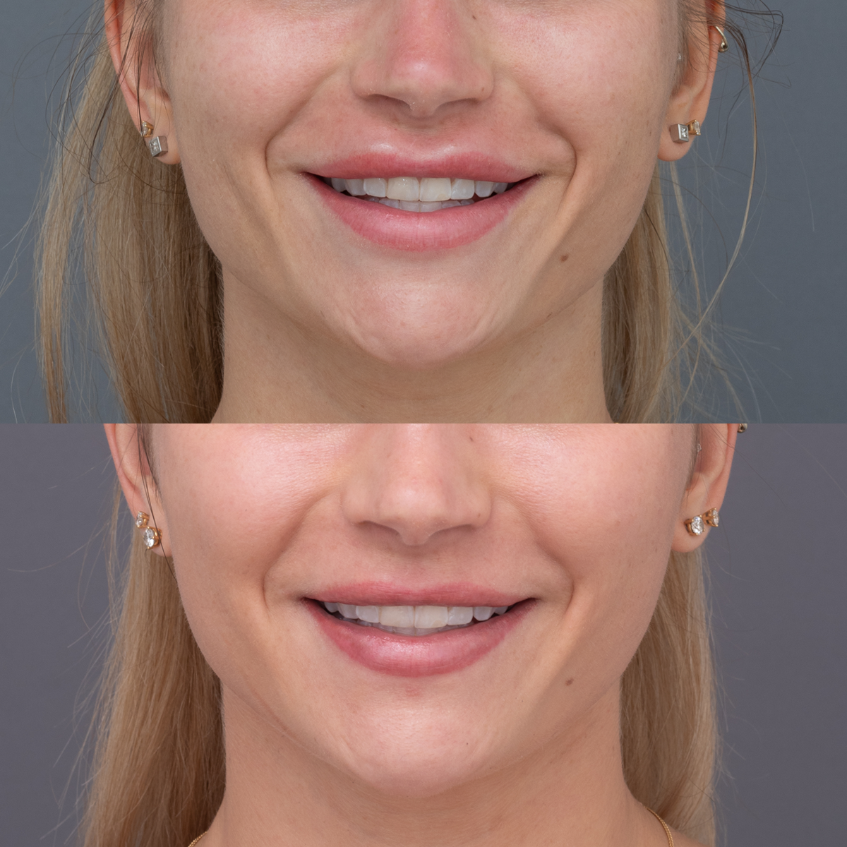 Amy Before & After focus lip view_front on