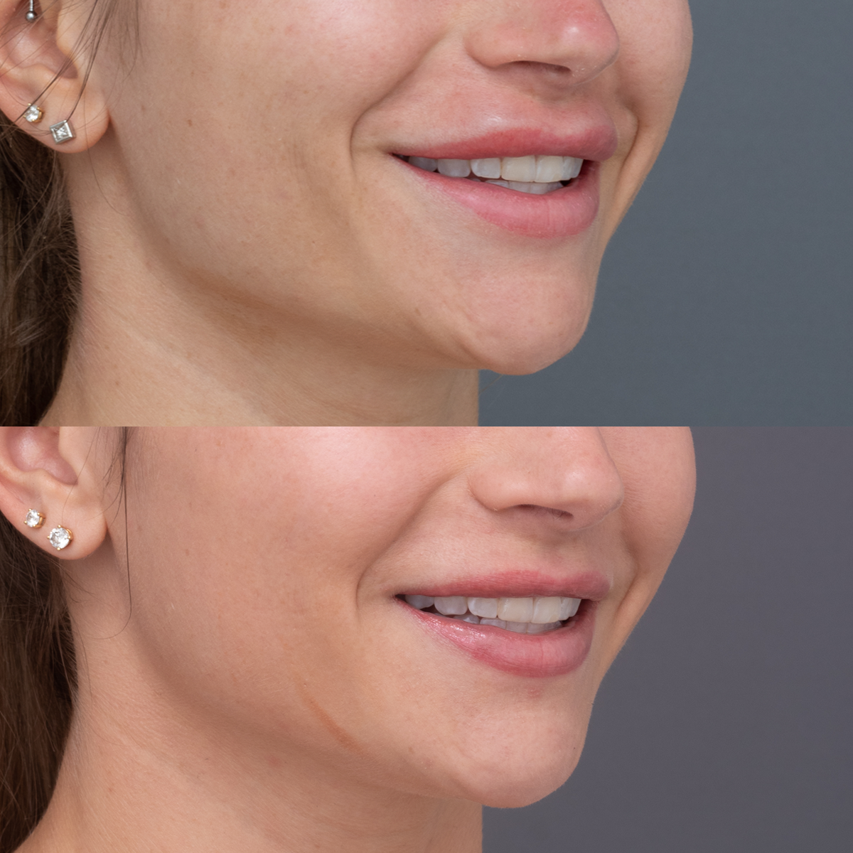 Amy Before & After lip focus view_3.4 view Right