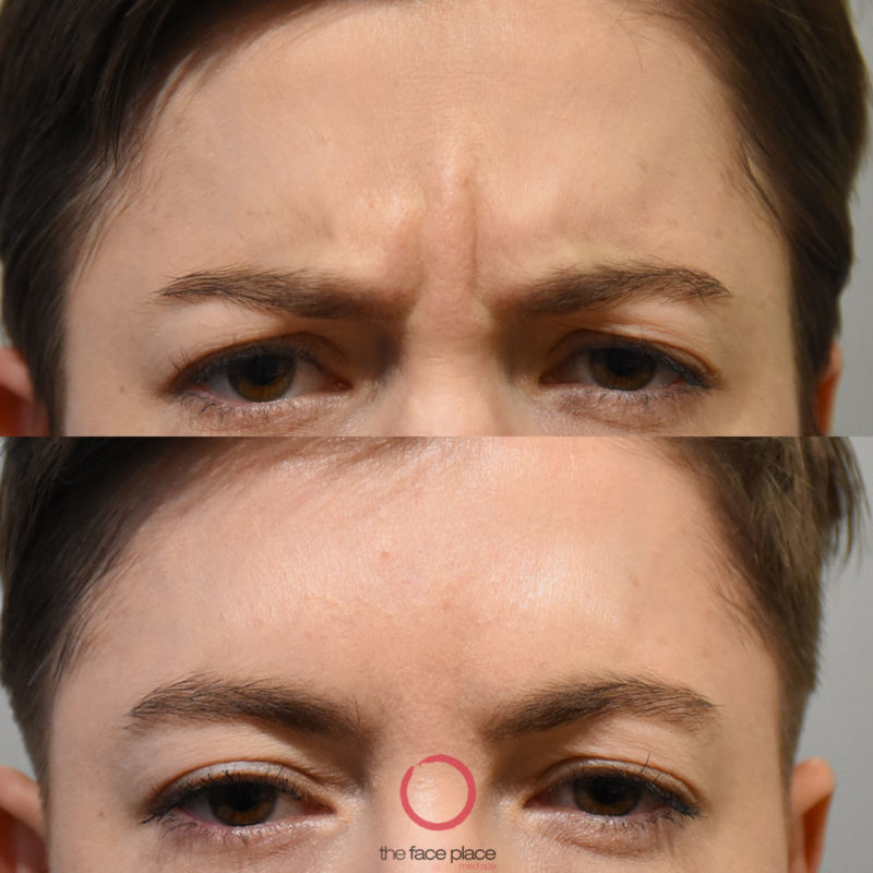 Botox for frown line