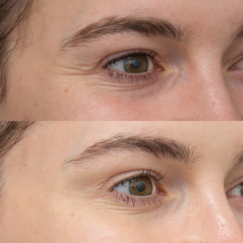 Botox for crows feet and brow lift_1200x1200