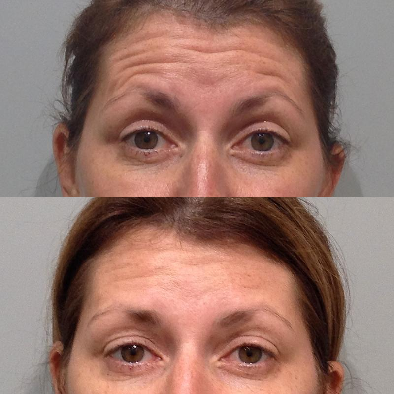 lines on forehead botox