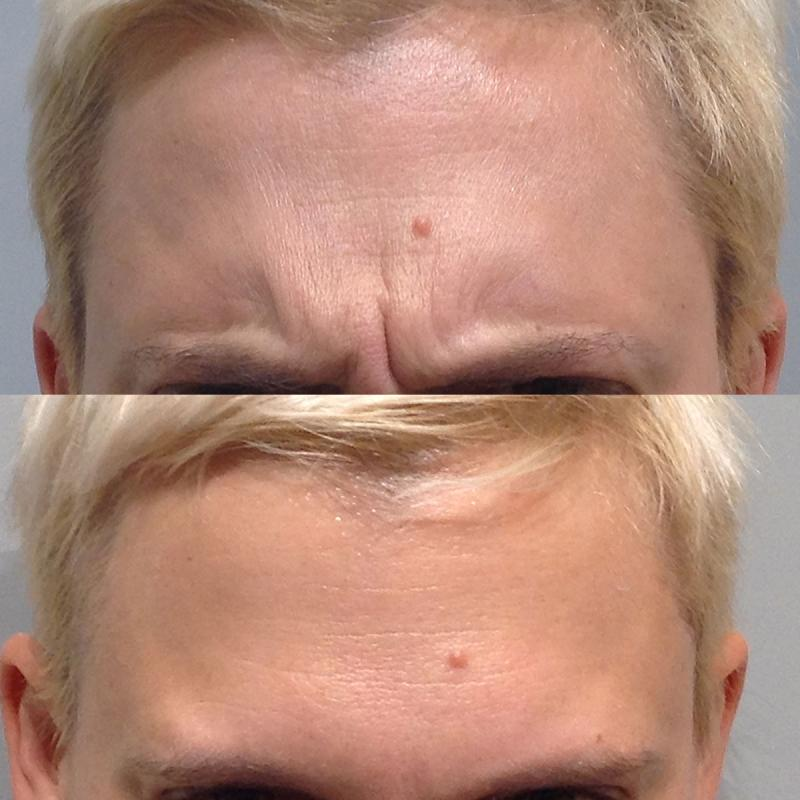 botox for mens frown