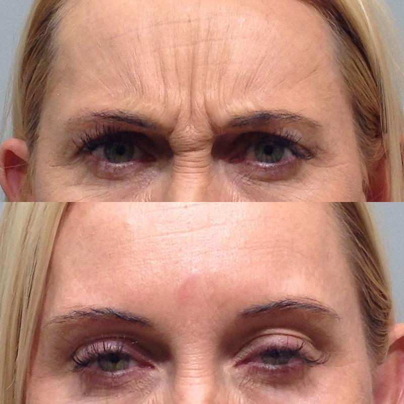 botox for frown and forehead lines